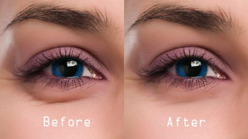 Was tun gegen Augenringe