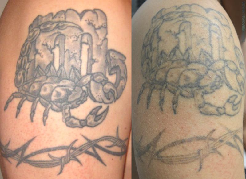 Ephemeral Tattoo ohne Laser Entfernung