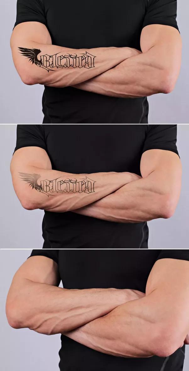 Tattoo Entfernung Phasen