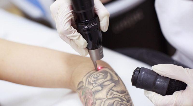 Tattoo entfernen Kosten