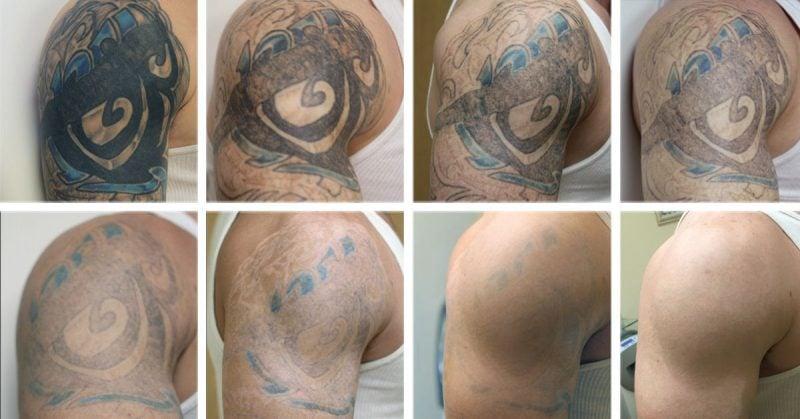 Tattoo Entfernen Ergebnis