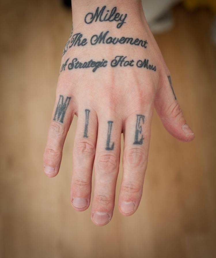 Tattoo entfernen Hand