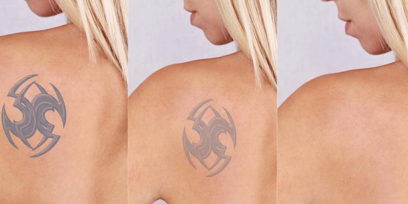 Tattoo entfernen Rücken