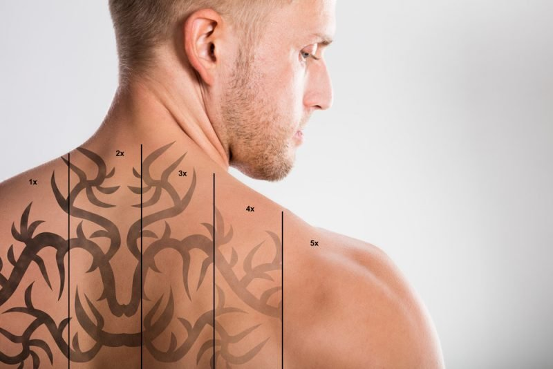 Tattoo Laser Entfernung Phasen
