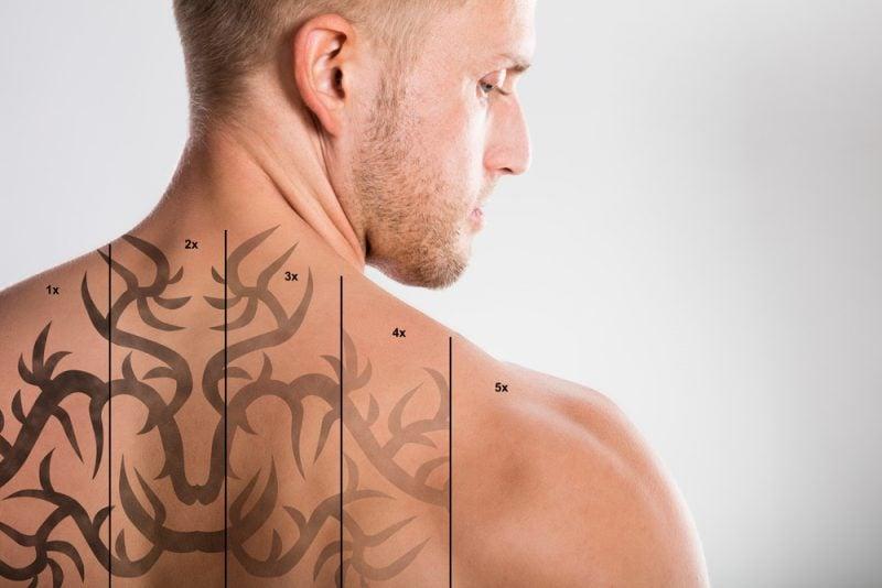 Tattoo Laser Entfernung Phasen
