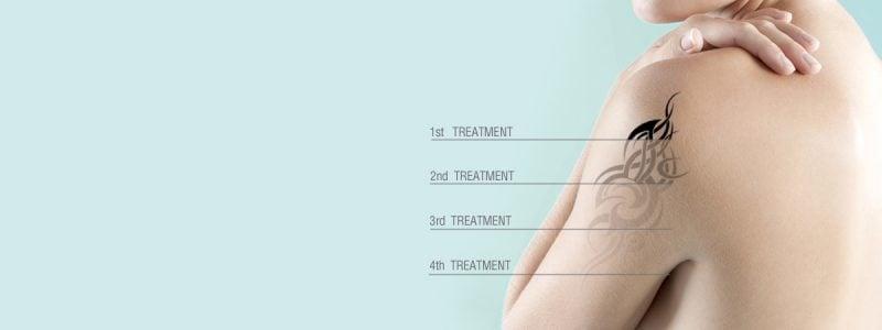 Tattoo Entfernen Behandlungen