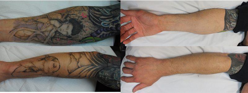 Tattoo entfernen Tipps