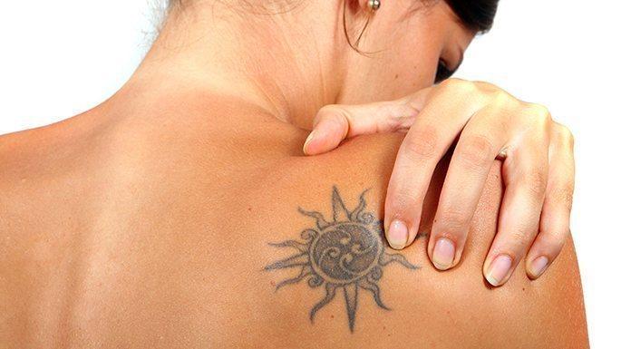 Tattoo entfernen ohne Laser