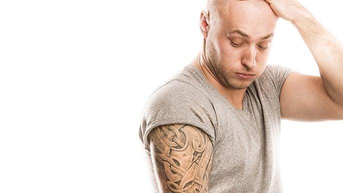 Tattoo entfernen wie