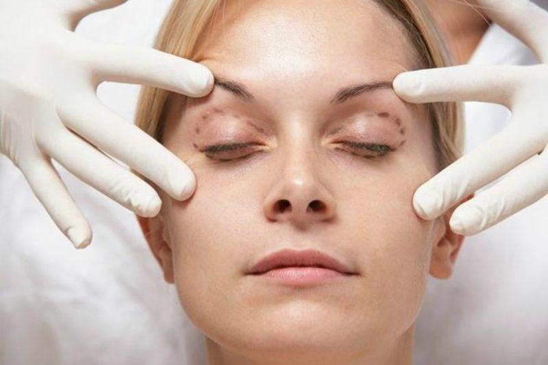 Schlupflider und Tränensäcke entfernen OP