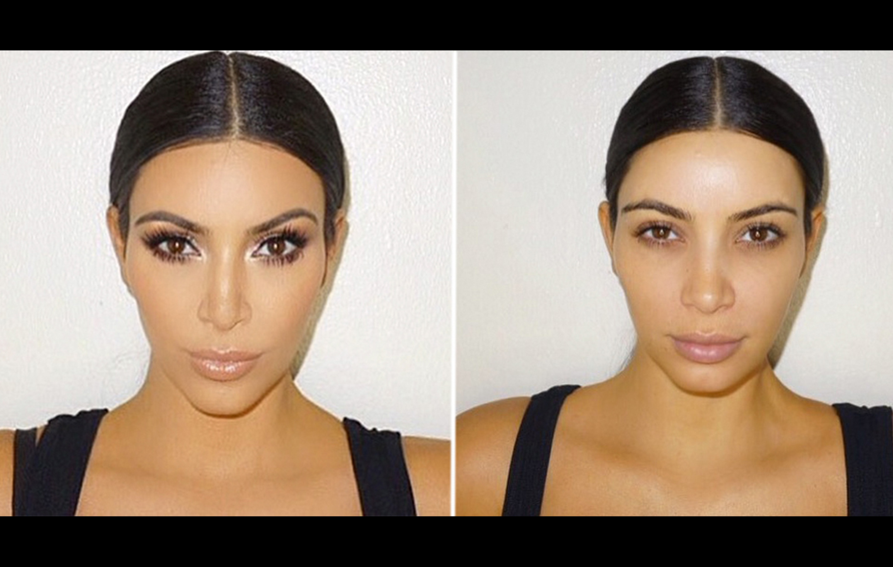 Kardashian's Gesicht