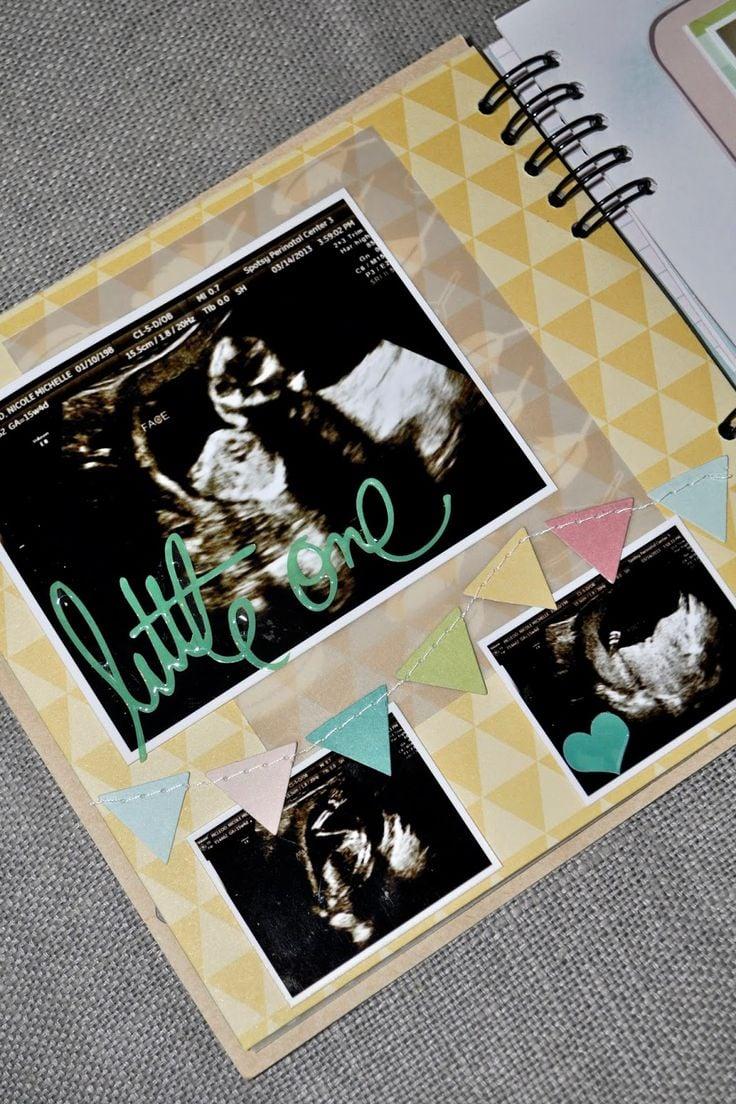Baby Fotoalbum zum Lebensbeginn mit Ultraschallbilder