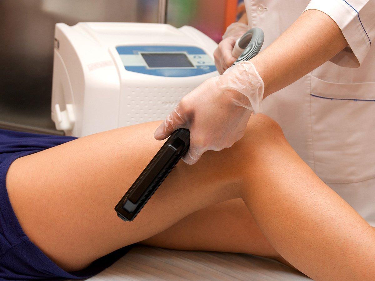 Laserbehandlungen für perfekte Beine