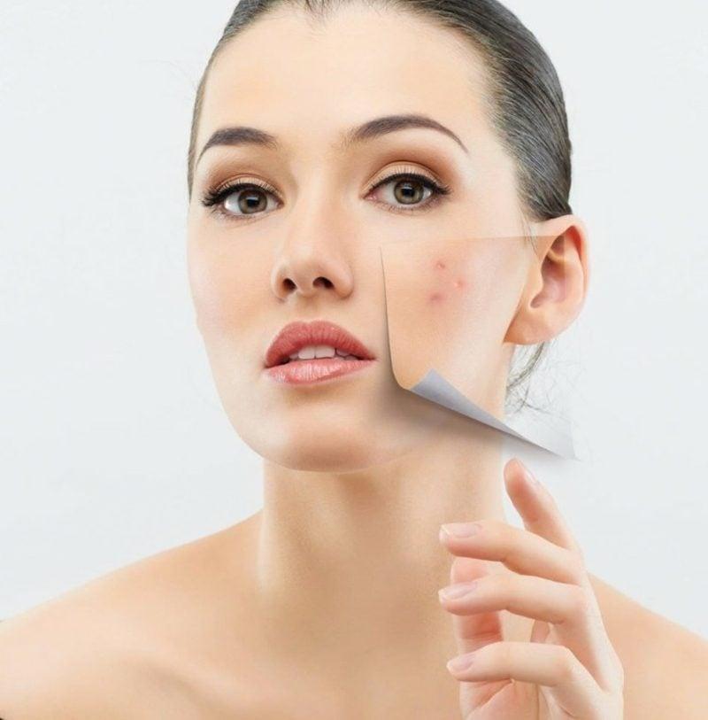 nicht komedogenes Make up gegen Akne und andere Hautprobleme