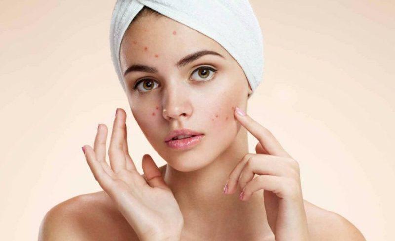 nicht komedogenes Make up wie kann man diese Kosmetik erkennen