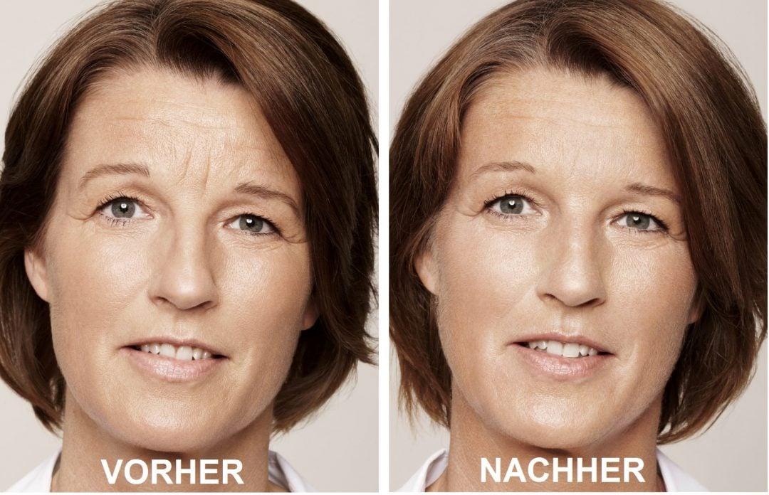 Hyaluronsäure Kur Hautalterung Effekt