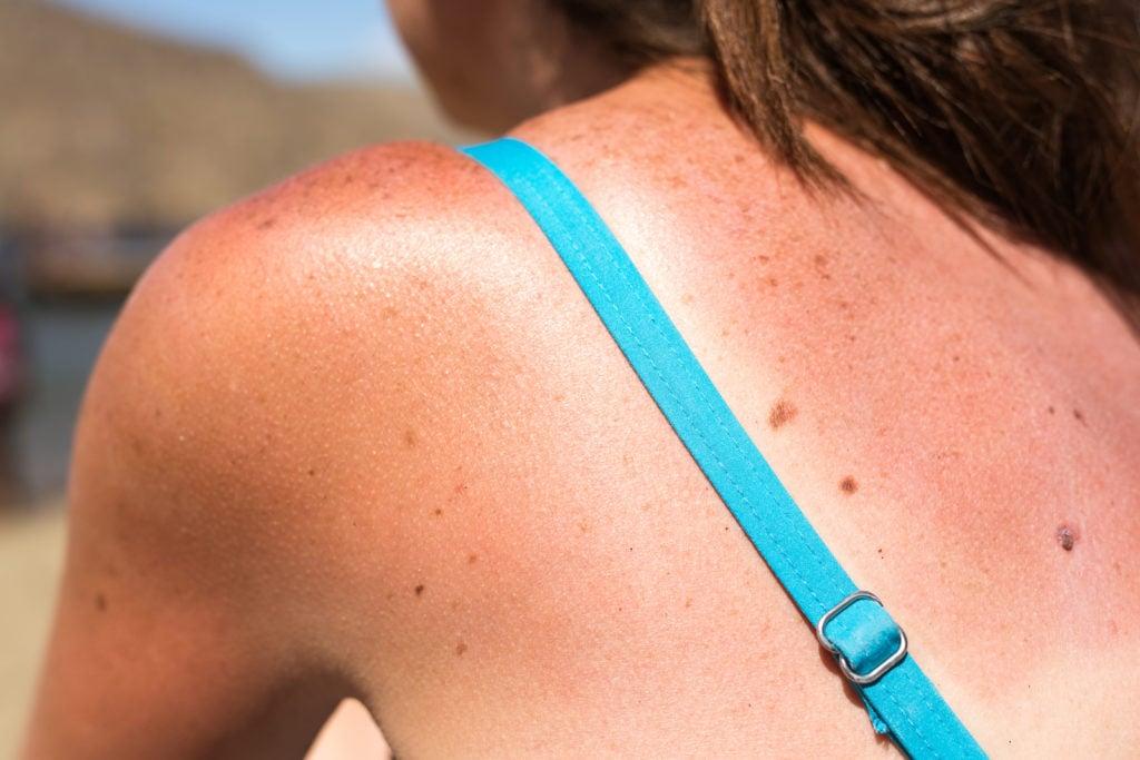 Sonnenschutz Sommer Sonnenbrand vermeiden