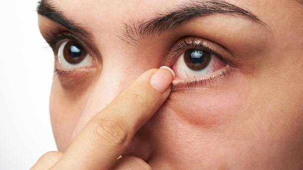 Tränensäcke und Augenringe entfernen