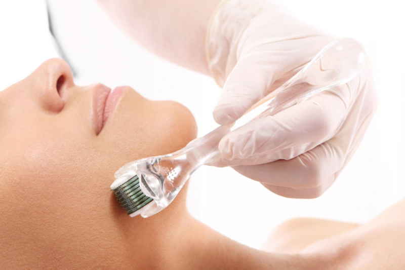 Hautpflege Micro Needling