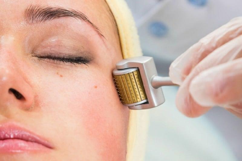Micro Needling Behandlung Falten Hautproblemen