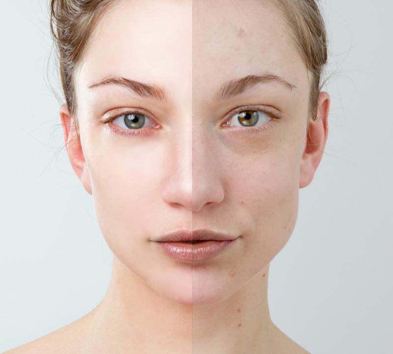 Fruchtsäurepeeling für besseres Hautbild