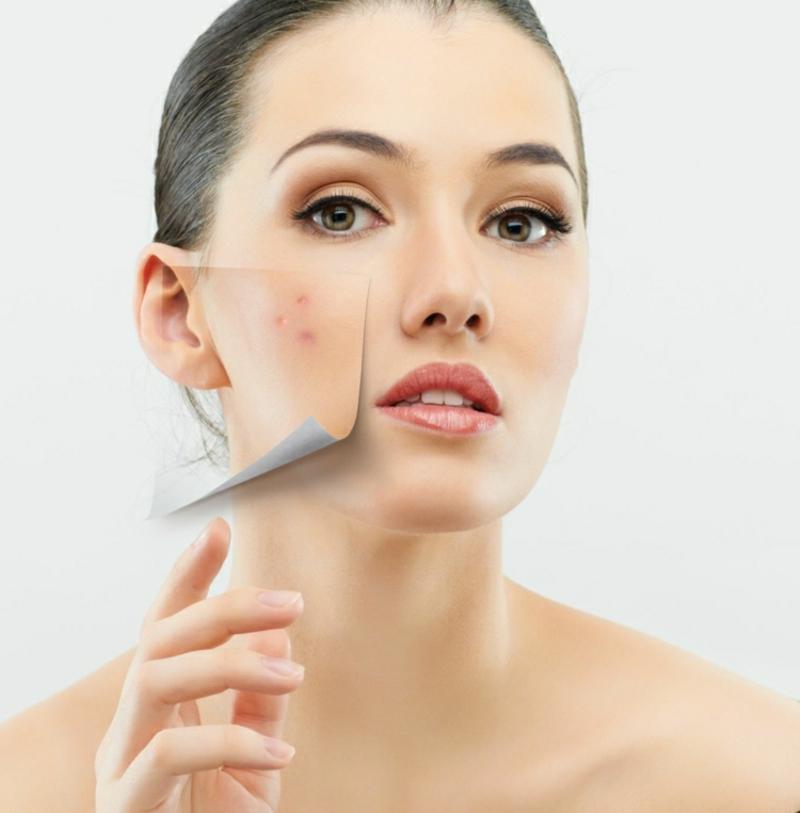 Peeling mit Fruchtsäure Akne bekämpfen