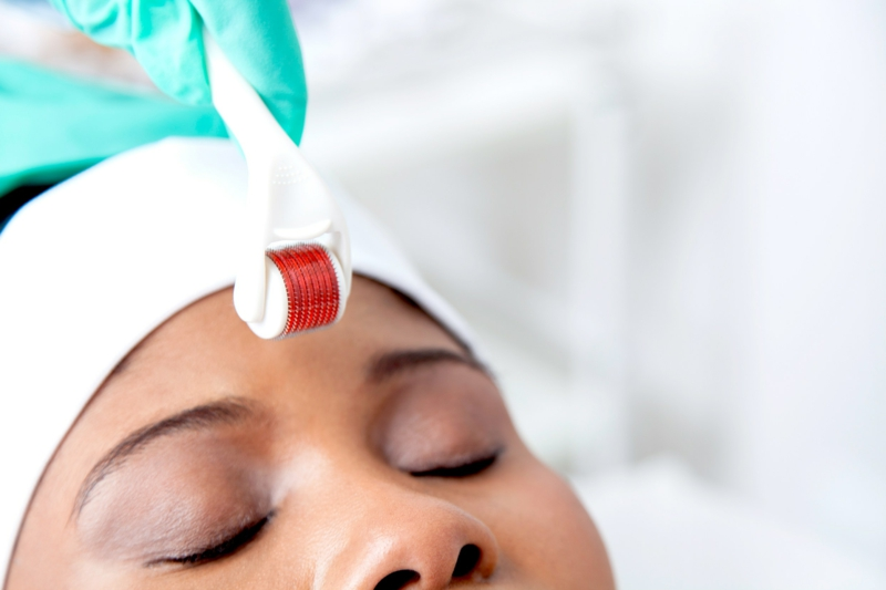 Micro Needling Stirn Akne Mitesser