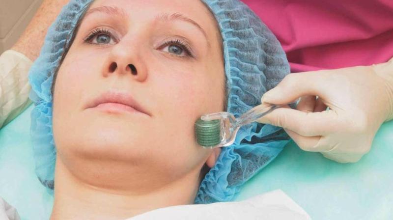 Dermaroller Behandlung professionell