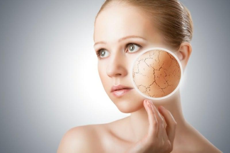 Feuchtigkeitsmaske selber machen trockene Haut bekämpfen