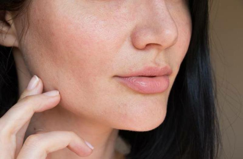 entzündete Haut beruhigen