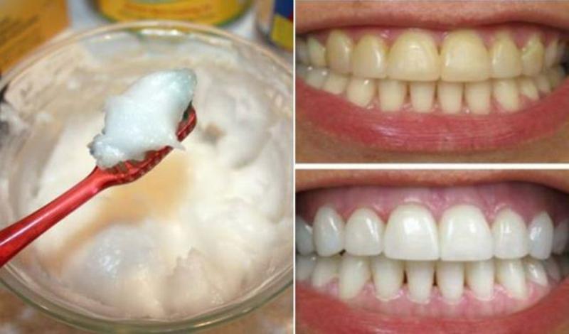Kokosöl gegen gelbe Zähne