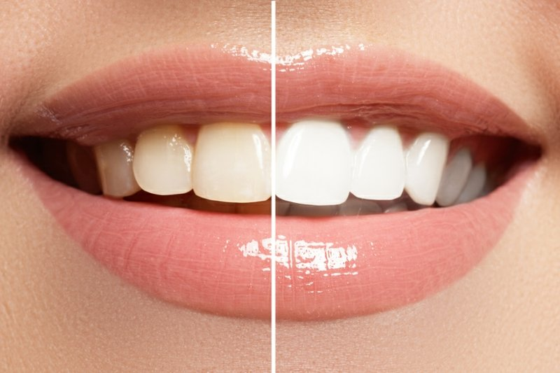 bessere Mundhygiene mit Kokosöl