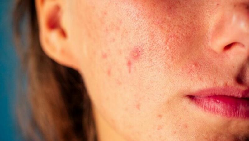 Argan Öl entzöndungshemmend gegen Akne