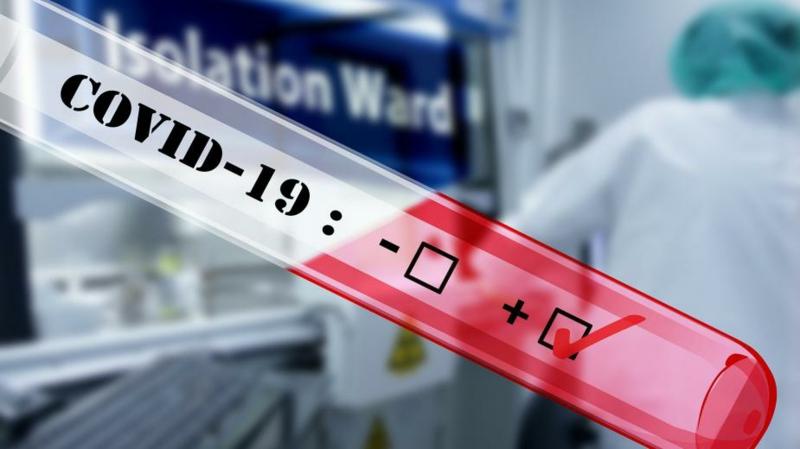 ein Labortest machen Covid 19 positiv