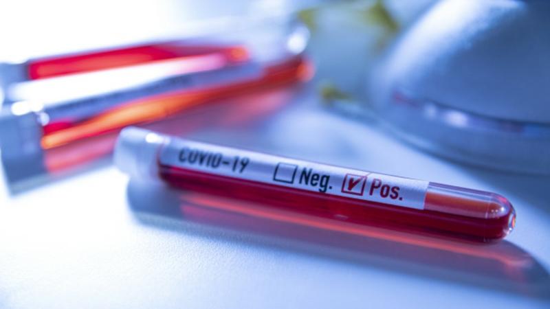 positive Blutprobe Covid 19 Behandlung