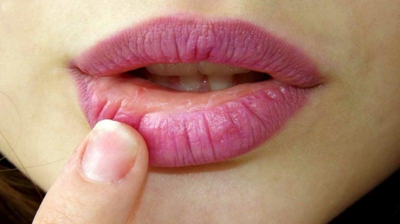 spröde Lippen pflegen