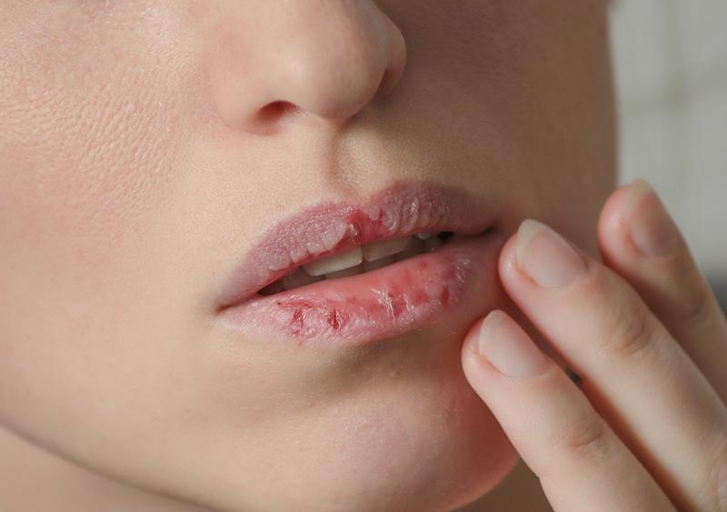 trockene Lippen pflegen