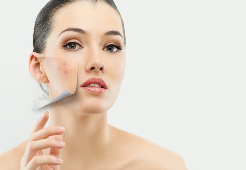 Akne pflegen und heilen