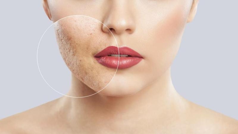 Naturkosmetik gegen unreine Haut und Mitesser