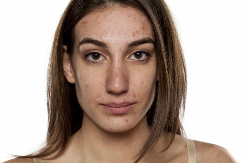 kosmetische Produkte Akne