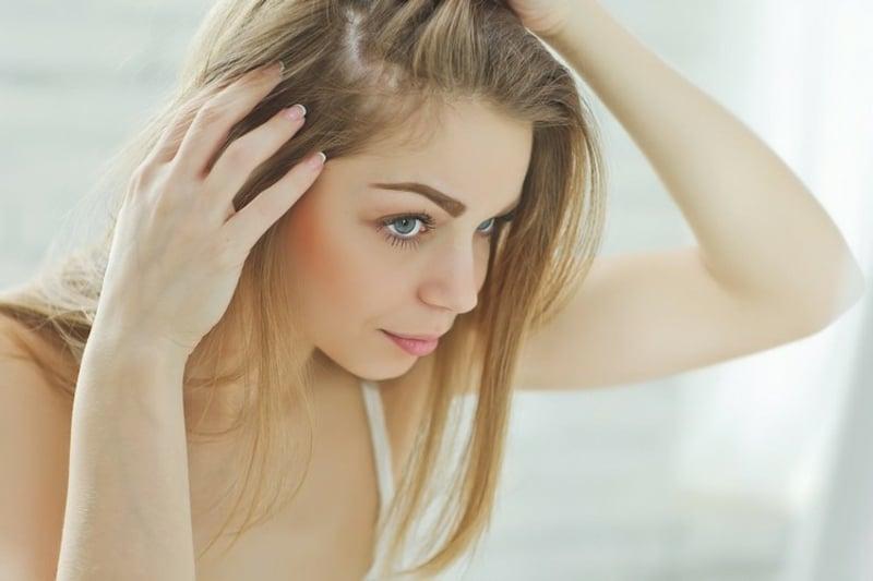 fettiger Haaransatz