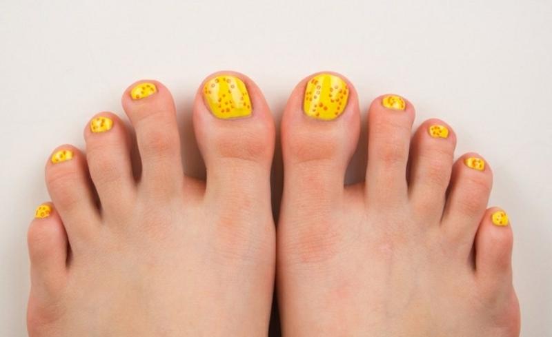 Fußnägel lackieren Sonnengelb