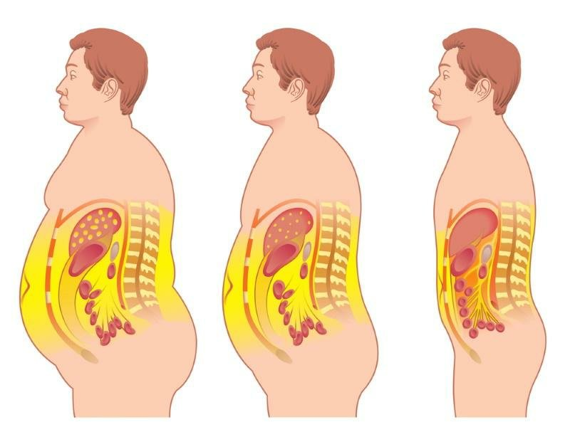 viszerales Fett reduzieren hilfreiche Tipps